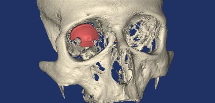 implant oka3